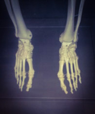 skeleton feet, The Collection, feet bones, bones of foot